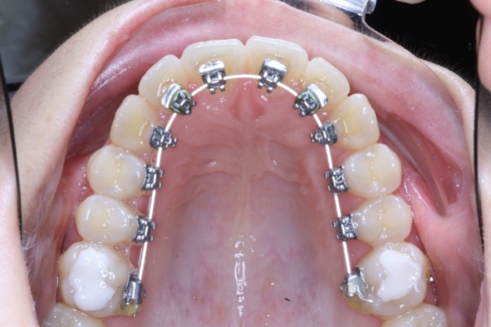L\'orthodontie invisible - Dr Youness CHRAIBI